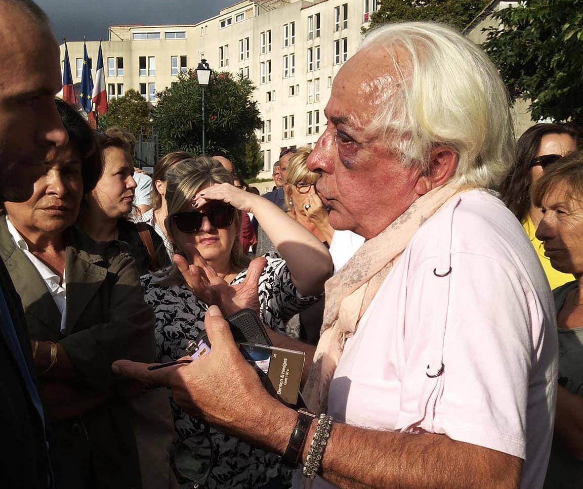 Jean-François Giacomini, 70 ans, porte toujours les traces de son agression. (Photo et vidéo Jean Christophe Cantera)