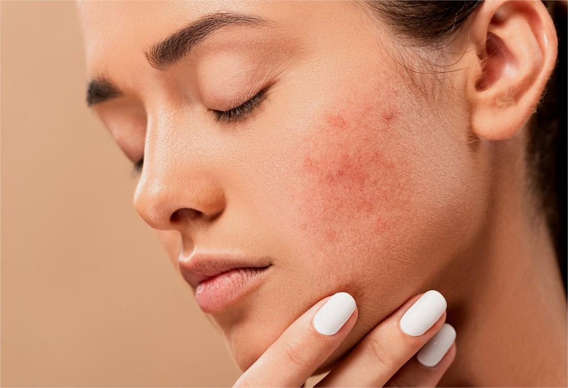 Coronavirus : une augmentation des consultations chez les dermatologues