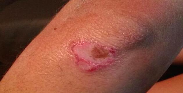 Infections cutanées de Vivario : Ce qu'il faut savoir